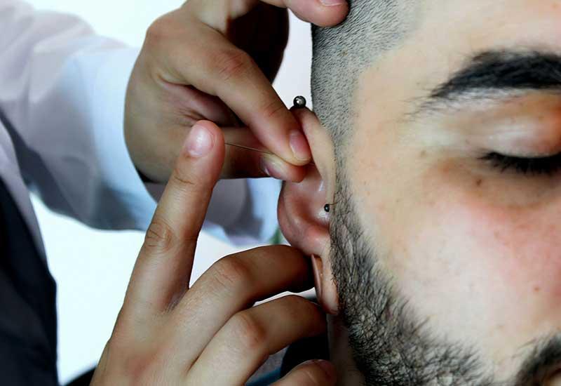 Acupunture in man's ear