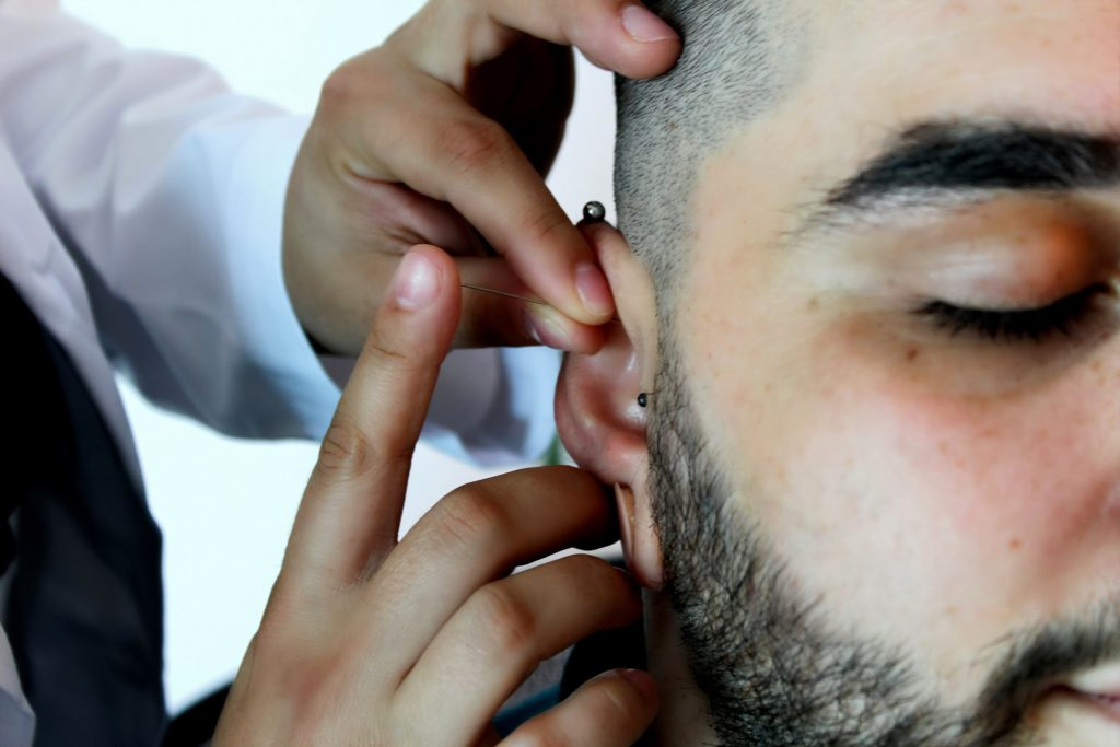 male patient receiving acupuncture